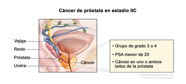 Cancer de prostata tipos. Modul de a trata hiperplazia endometrială cu varice