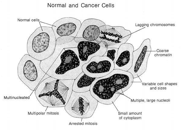 Normal And Cancer Cells Labeled Illustration Image Details Nci