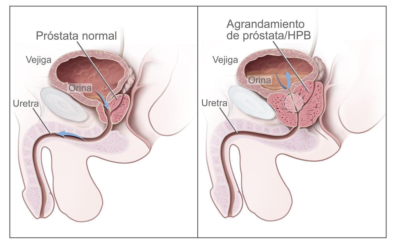 Implantátumos kezelés prosztata-megnagyobbodásban