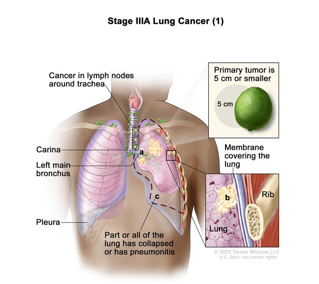 Stage IIIA Lung Cancer.