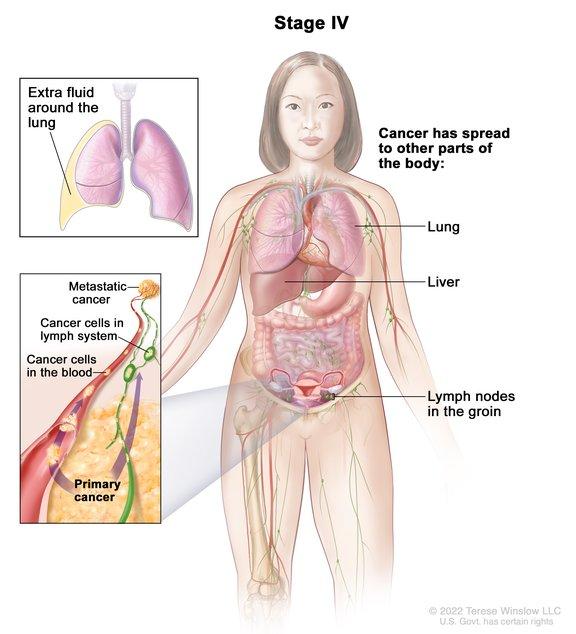 Ovarian Cancer Stage Iv Image Details Nci Visuals Online
