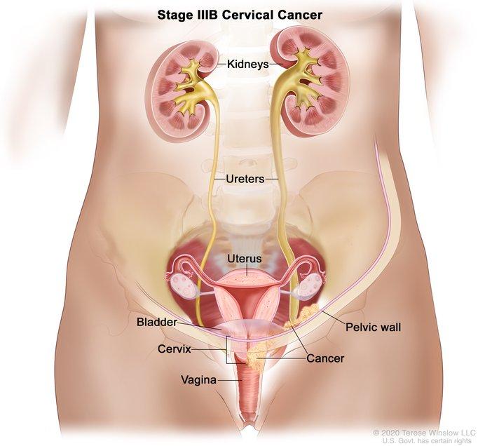 Cervical Cancer Stage IIIB: Image Details - NCI Visuals Online