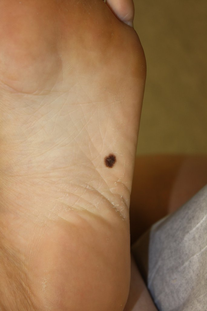 Skin Cancer Melanoma Foot Image Details Nci Visuals Online