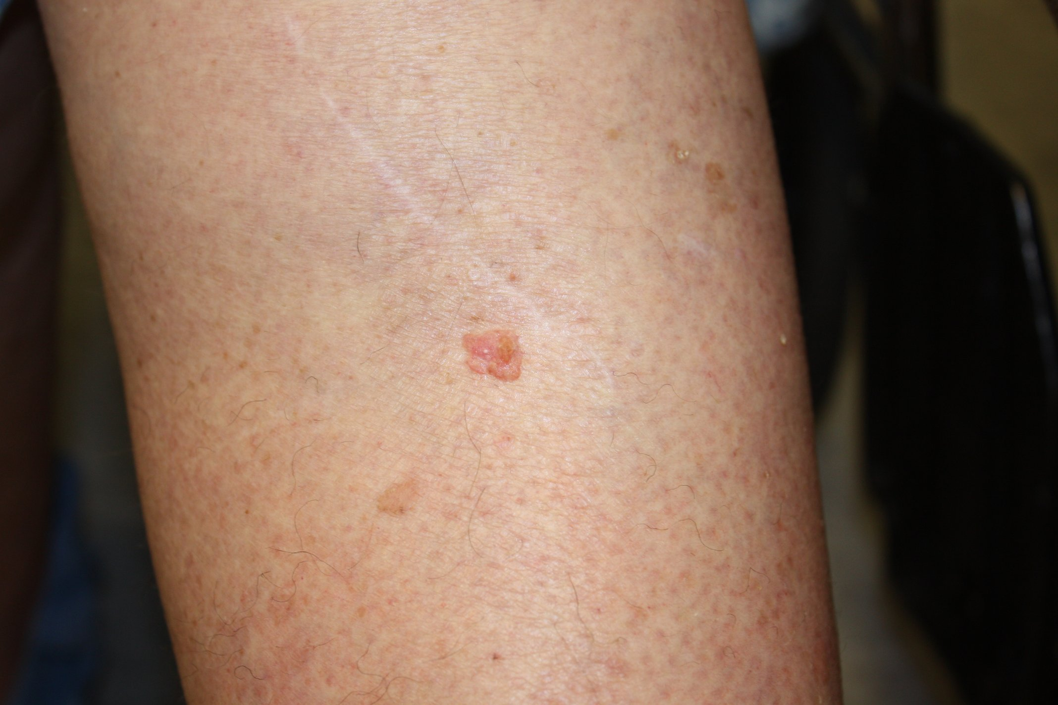 Skin Cancer Squamous Cell Carcinoma Leg Image Details Nci Visuals Online