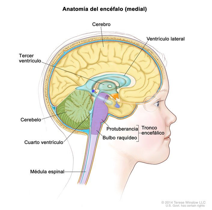 Brain, Medial, Child, Anatomy-Ependymoma - Spanish: Image Details ...
